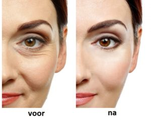 Hydroface cream, ingredients - hoe aanvragen?