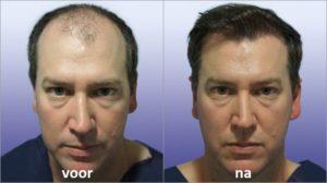 Premium Hair Grow Formula prijs