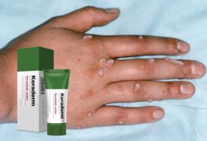 Keraderm crema, ingredientes, cómo aplicar, como funciona, efectos secundarios